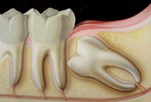 20 Yaş Dişleri Ve Gömük Dişler