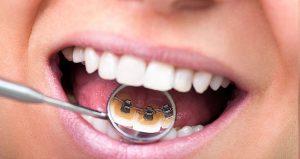 Lingual Diş Teli Eklenmesi