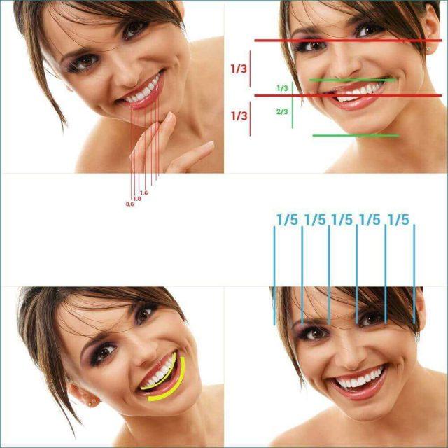 Estetik Bir Gülüşün Bileşenleri