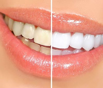 How Clean are Your Teeth?