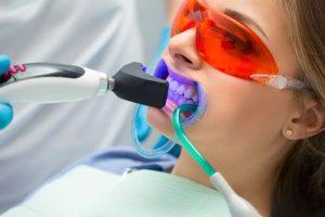 Lazer Diş Beyazlatma Nasıl Yapılır?