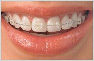 Seramik Porselen Diş Teli