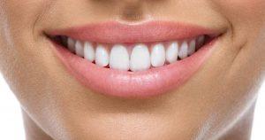 Diş Kaplama Nedir?