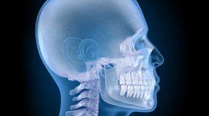 Çene Cerrahisi Tedavisi