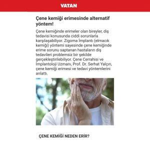 Prof. Dr. Serhat Yalçın, Zigoma İmplant İle İlgili Röportajıyla Vatan'da