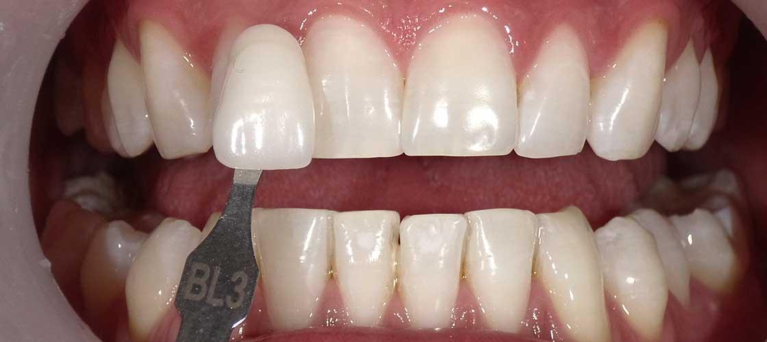 Diş Beyazlatma Sonrası