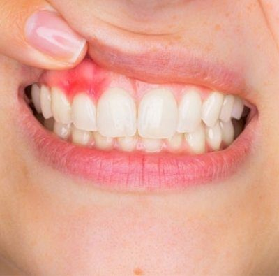 Suggestions for Gum Health