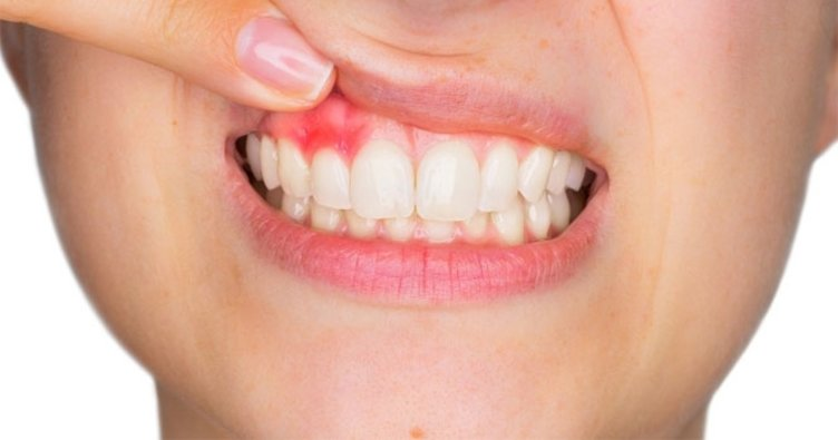 Signs of health gums