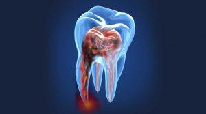 Endodontik Cerrahi