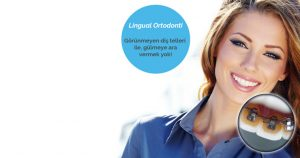 Lingual Ortodonti Görünmeyen Diş Teli