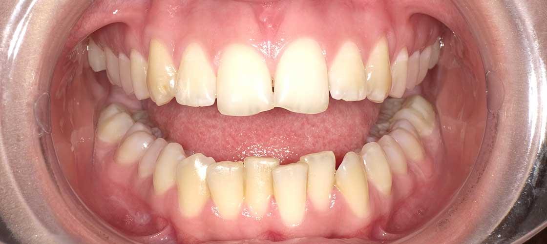 Ortodonti Öncesi