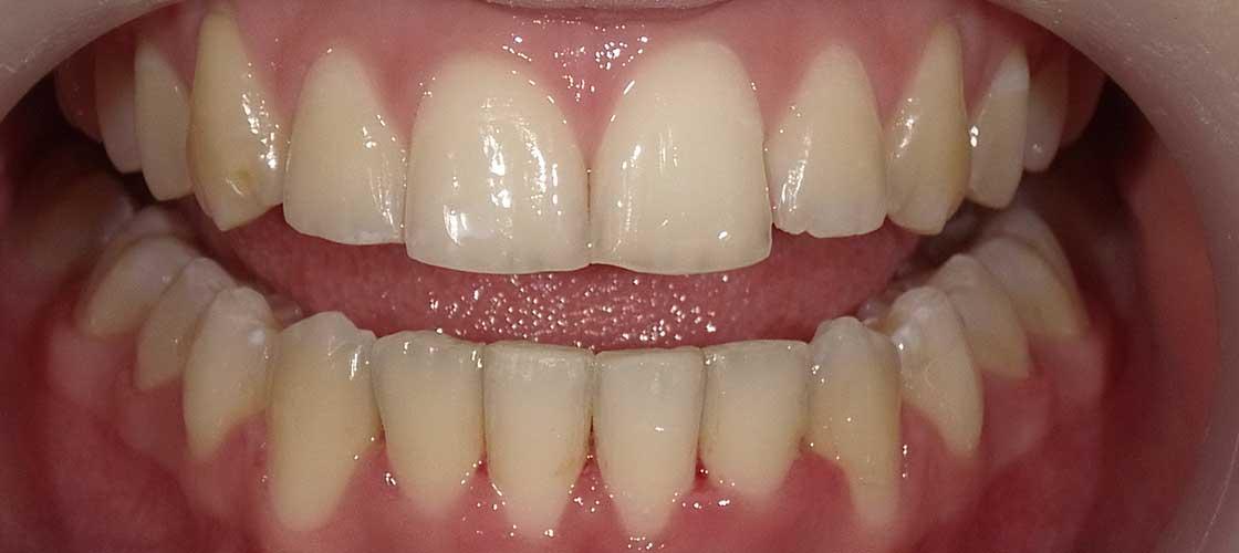 Ortodonti Sonrası