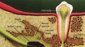 Osteonekroz
