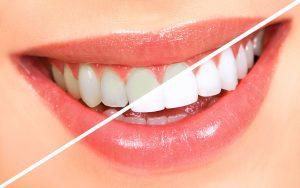 Porselen Diş Kaplaması