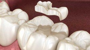 Porselen Dolgu
