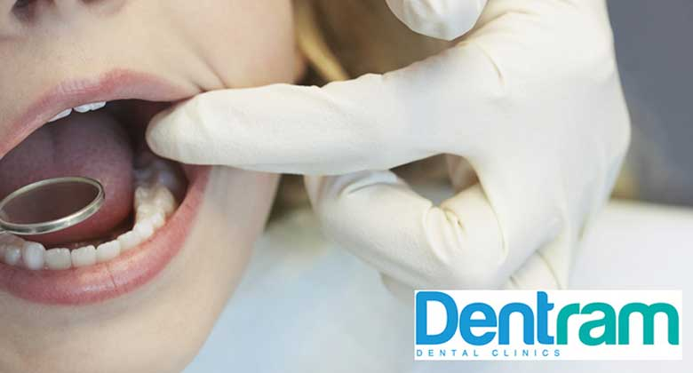 8 Simple Ways to Prevent Tooth Decay