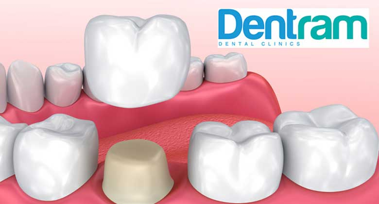 Dental Crowns – The Ultimate Guide