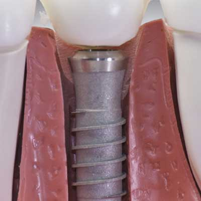 Dental Implants: Types, Pain, Cost