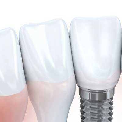 Dental Implant Average Cost