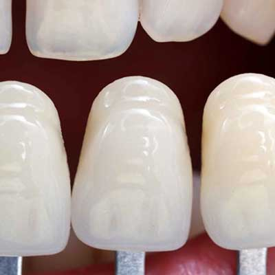 How Make Porcelain Veneers