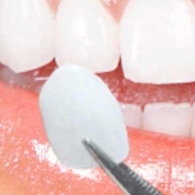Porcelain Veneers on Teeth