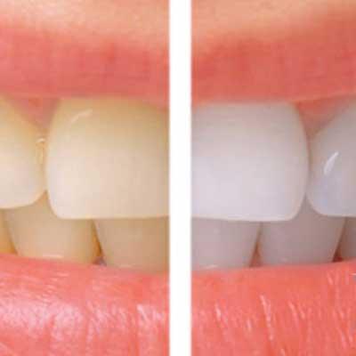 Professional Teeth Whitening Cost in Turkey