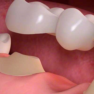 What is a Dental Bridge ?