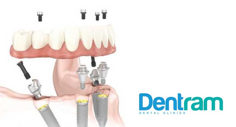 What is All-on-4 Implants